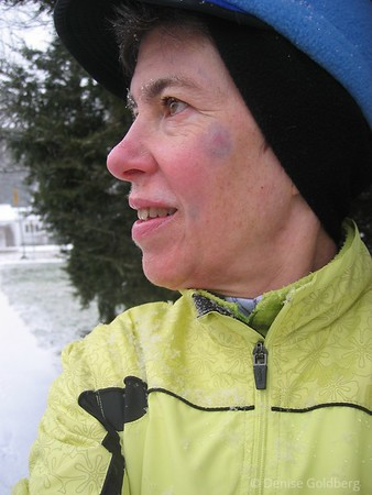 Walking in the snow on December 30, 2006. Bruise still evident... it's funny though - before my accident I would have guessed that having a permanent bruise on my face would bother me, but it doesn't. Instead it's a curiosity...