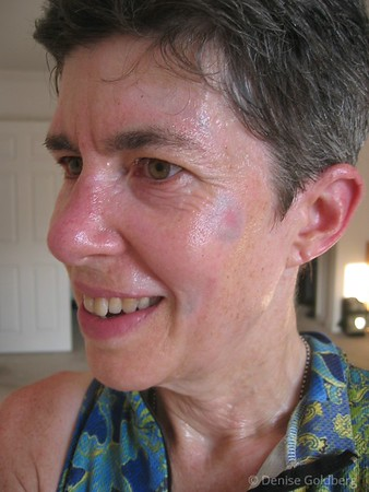 This shot was taken on August 1, 2006 after a bike ride on a very hot and humid day. Bruises? Still there...