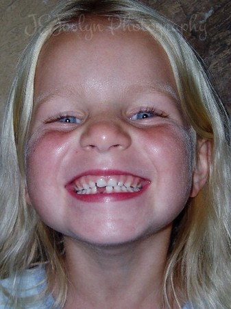 What fun, loosing that first tooth!  Children yearn to grow old, wonder why?