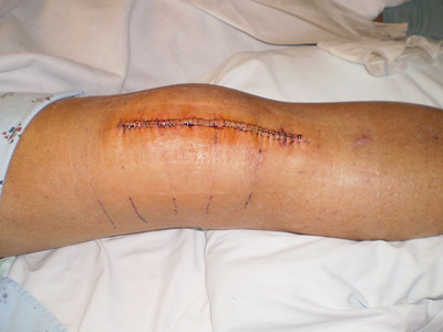 Our first look at the incision