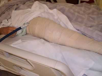 Wrapped-up Leg