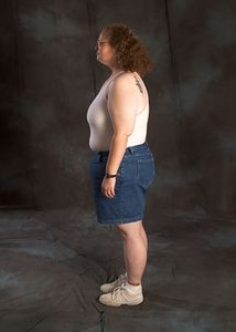 March 29, 2004.  Five and one-half months after surgery.  230 pounds.