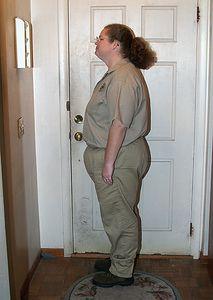 Jan 15, 2004.  Three months after surgery.  261 pounds.
