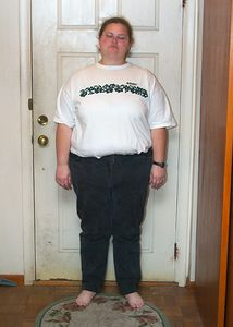 Nov 19, 2003.  Four weeks after surgery.  295 Lbs