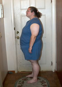 October 21st, 2003.  One day before surgery.  330 lbs.