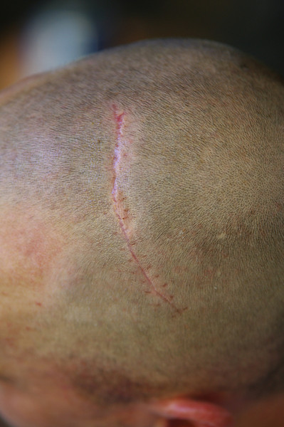 Jason''s Scar from his Diving Board Encounter
