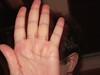 Brandon's Hand