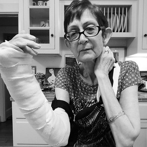 February 2014, My mother who had never been clumsy, had never broken a bone, badly sprained each arm in a six week period.