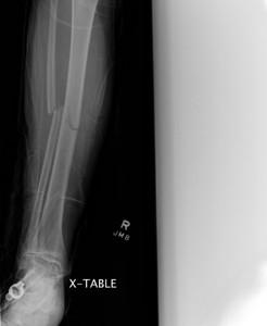 Richard's X-Rays