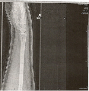 Richard's broken arm