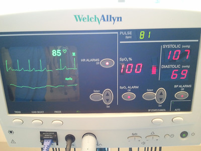 Vitals prior to surgery.