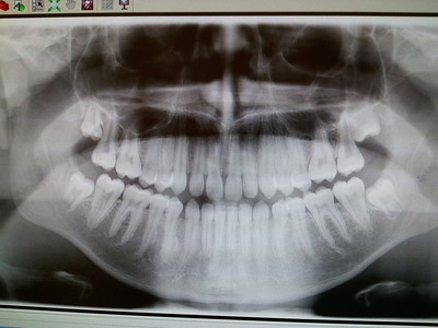 Wisdom teeth are clearly visible on the outermost of the to and bottom rows, none of which have surfaced yet.