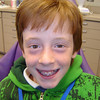"""Our 2.5yr journey to a beautiful smile has begun!  Yes, he chose the pink bands!  As Carter says """"Real Men Wear Pink"""""""