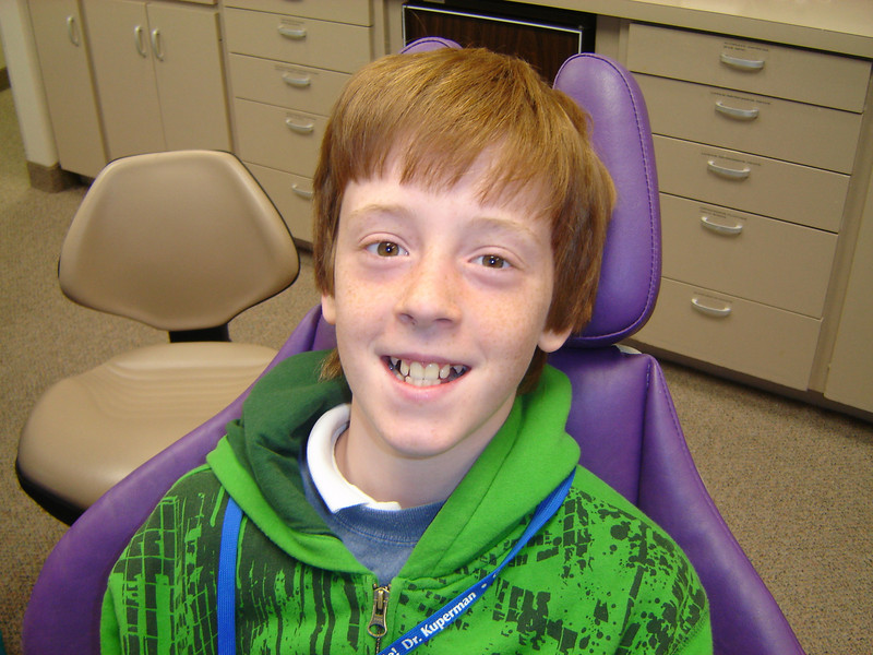 Before braces<br /> Carter 12yr old