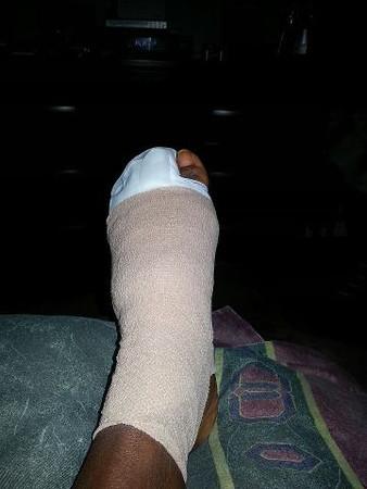 Chyne hurt foot...