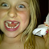 Upper tooth Nov 20th