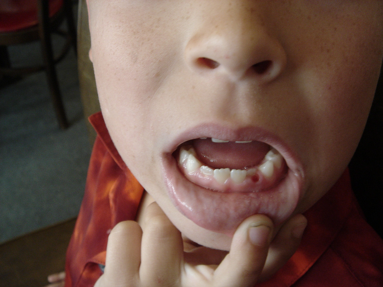 See? No tooth!