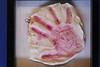 Lesli plaster hand cast