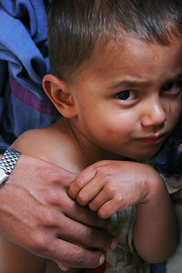 A kid recovering from burns, Tansen Mission Hospital.