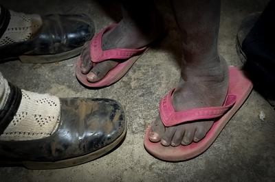 Poverty feet