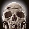 My Thick Skull