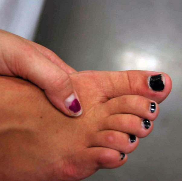 Ella Barne's toes turned black during the Division III Women's Epee.