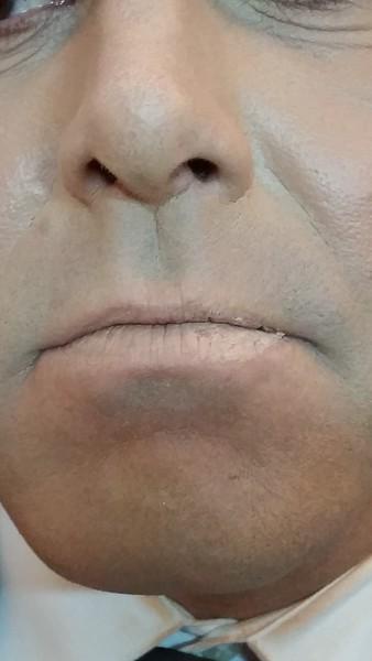 Crusting lips