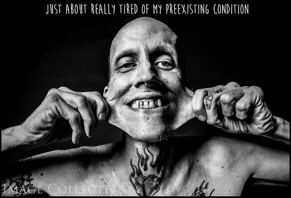 James - Preexisting Condition