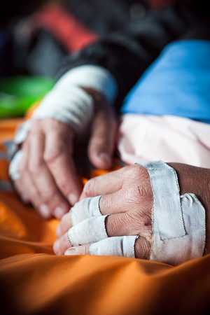 A climbers hands bandaged with tape