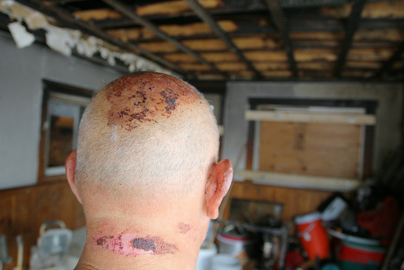 Herpao Yang shows off the burns he got to his head neck and ear when he ran onto their porch to throw some propane tanks out a window that was on fire to help same his family and their home recently. SENTINEL & ENTERPRISE/JOHN LOVE