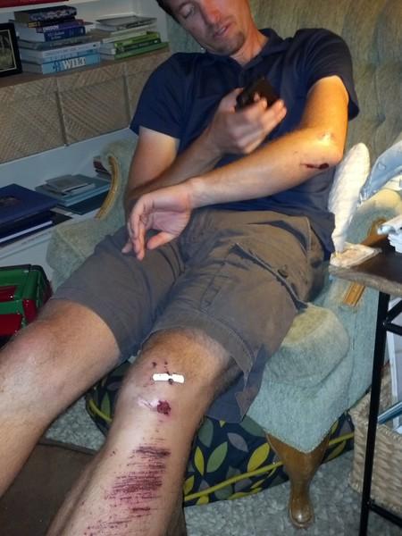 Ouch Jonny!