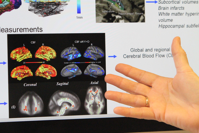 UMass Lowell Professor of Nutritional Epidemiology Katherine Tucker in her office gestures to examples of brain imaging. She has a grant to research a link between nutrition and dementia. (SUN/Julia Malakie)