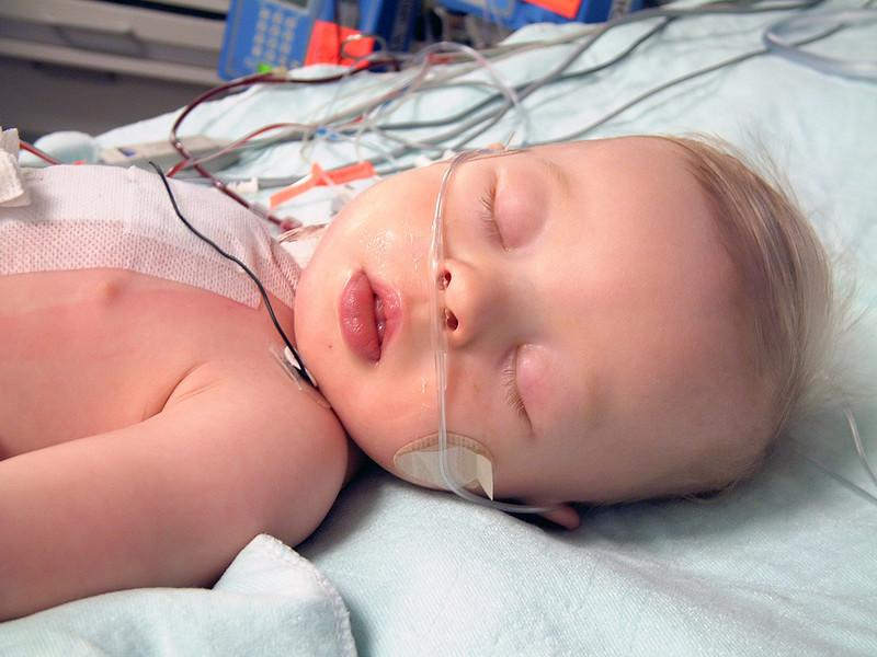 They've started to remove some things, in this photo you can see that the ventilator has been removed. His oxygen tube is still there however. This is to help keep his blood-oxygen levels up. The goal is 95% or higher.