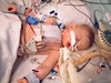 This is another view of a typical scene for a child to look like, when he/she is first out of the OR.