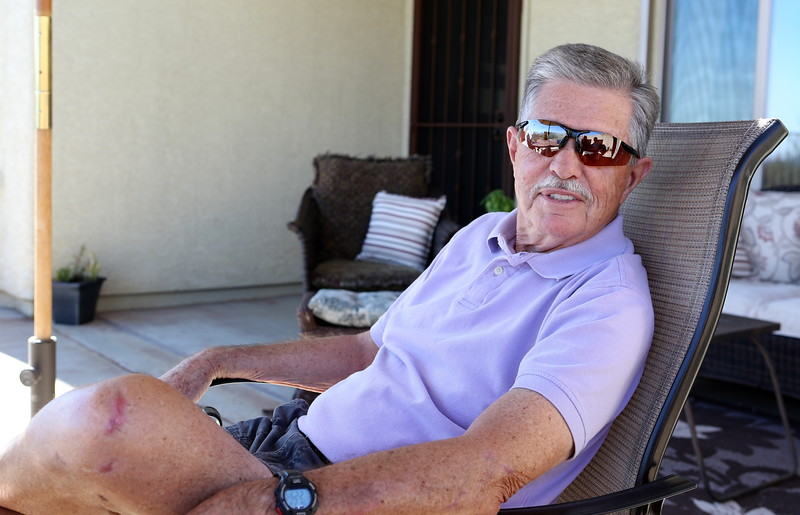 Jim, an avid bicycle rider and outdoors-man, has recovered steadily from a horrific bicycle crash in October 2014.