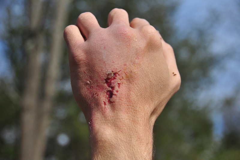 Looks painful.  But it could have been so much worse, in light of how huge the boulder was that landed on him.