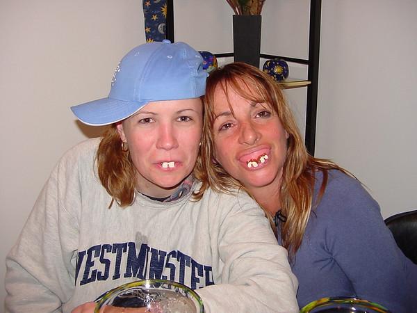 Bubba teeth.