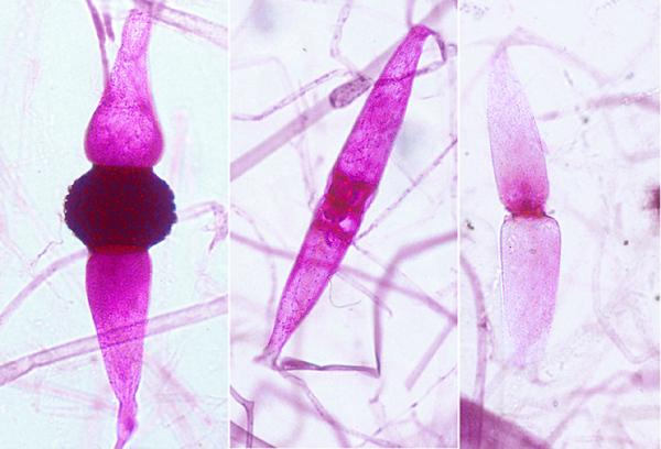 Mold, Rhizopus stolonifera, zygospore