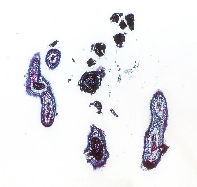 Ectotrophic Mycorrhiza on root x.s. Fungi on Angiosperm