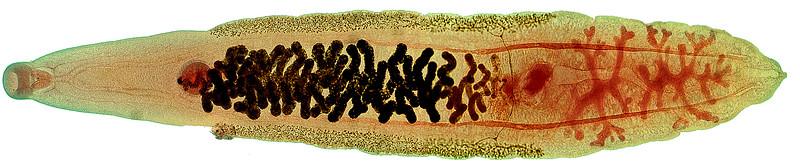 Liver fluke, Opisthorchis sinensis