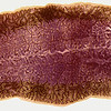 Sheep liver fluke, Fasciola hepatica