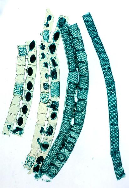 Spirogyra sp, conjugation