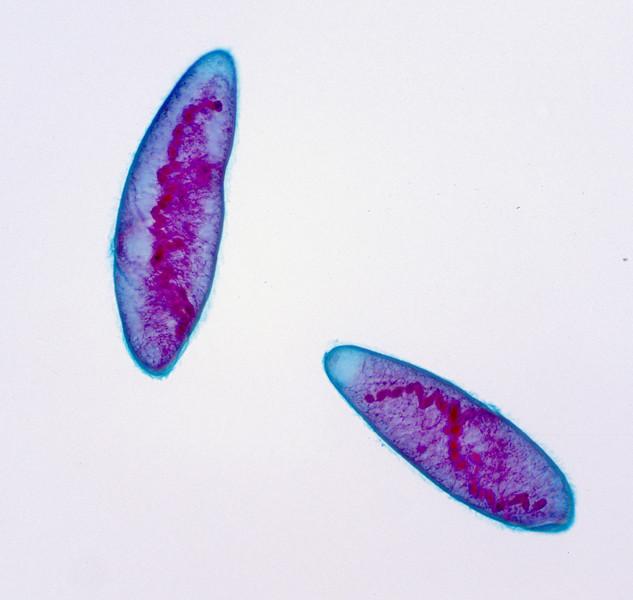 Protozoan, Spirostomium sp.