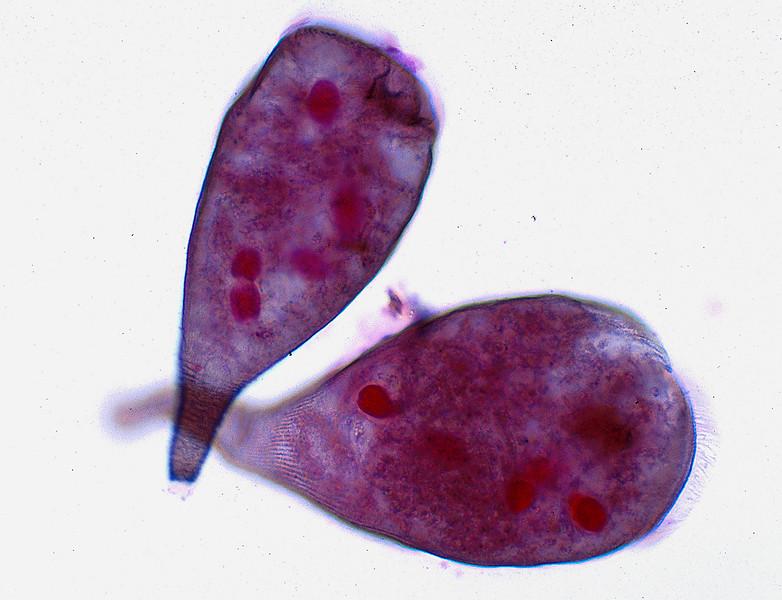 Protozoa, Stentor sp.
