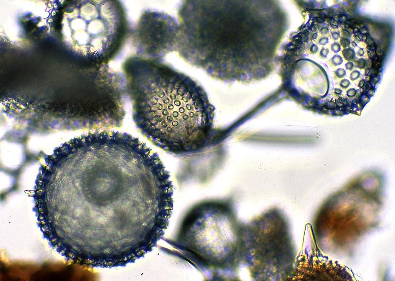 Protozoa, Radiolaria