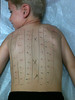 Allergy test with Dr. Mamlok in Lubbock (9.10.10)