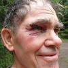 Biker needed seven stitches to the eye brow area