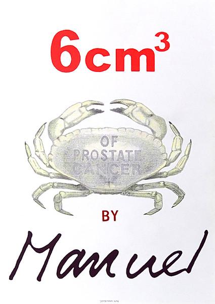 6 cm3 of Prostate Cancer