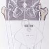 Retrograde cystography