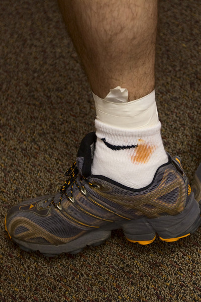 Josh had a strange premonition about his impending demise, choosing to spread fake blood on his sock pre-race.